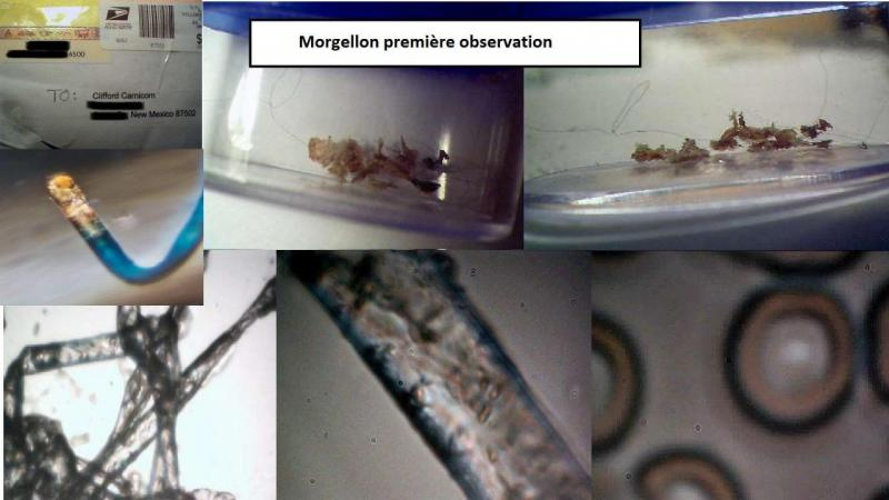 maladie-des-morgellons-2.jpg